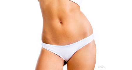 Mons Pubis Fat Reduction Surgery in Noida